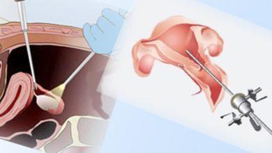 Endometriozis Çikolata Kisti Hastalığı Tedavisinde Ameliyat Şart Mıdır?