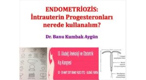 Endometriozis: İntrauterin Progesteronları Nerede Kullanalım? 13. Uludağ Jinekoloji Ve Obstetrik Kış Kongresi, Mart 2017, Bursa 2
