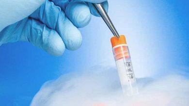 Yumurta, Sperm Ve Embriyo Dondurmak