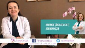 Rahimde Çikolata Kisti: ADENOMYOZİS 2